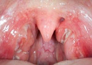 Один из вариантов острого тонзиллита - лакунарная ангина