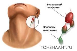 Увеличенные лимфатические узлы