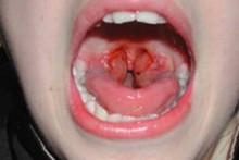 Симптомы и лечение катаральной ангины у детей и взрослых
