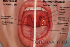 Классификация ангин и хр тонзиллита