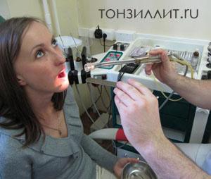 На фото вакуумное промывание миндалин с помощью специальной насадки