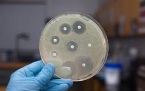 Определение чувствительности микрофлоры к антибиотикам