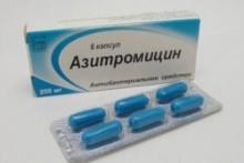 Применение Азитромицина для лечения ангины