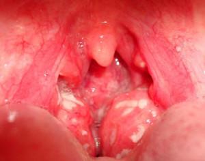 сильная боль в горле при глотании без температуры