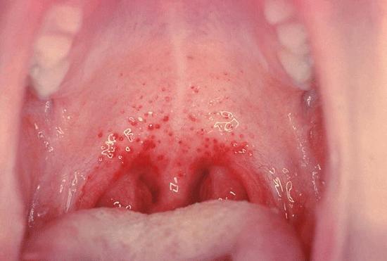 Герпетическая ангина