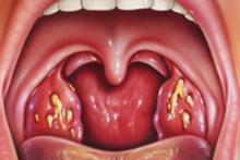 Причины, симптомы и методы лечения тонзиллита