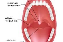 Виды миндалин, их расположение и возможные заболевания