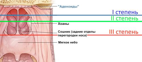 степени-гипертрофии-аденоидов