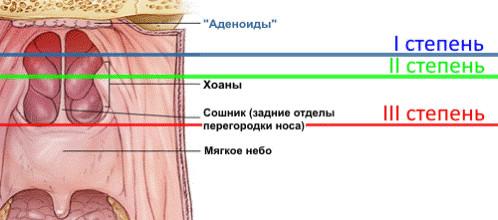 Классификация аденоидов фото 2