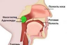 Симптомы, диагностика и методы лечения аденоидных вегетаций у детей