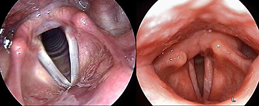 Ларингоскопия 1. здоровая гортань; 2.воспаление слизистой оболочки и голосовых связок