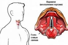Симптомы и методы лечения катарального ларингита