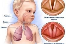 Симптомы и лечение острого ларингита у взрослых и детей