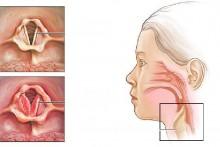 Причины развития, симптомы и лечение стенозирующего ларингита