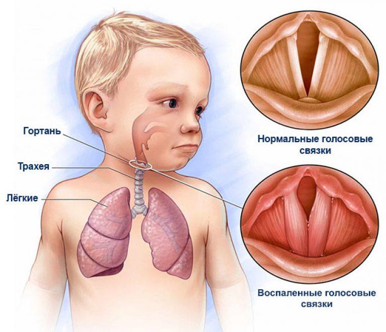 Ларингит клиника диагностика лечение