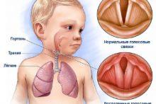 Причины, симптомы и лечение ларингита у детей разного возраста