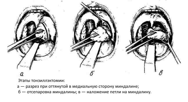 etapy-klassicheskoy-tonzillyektomii