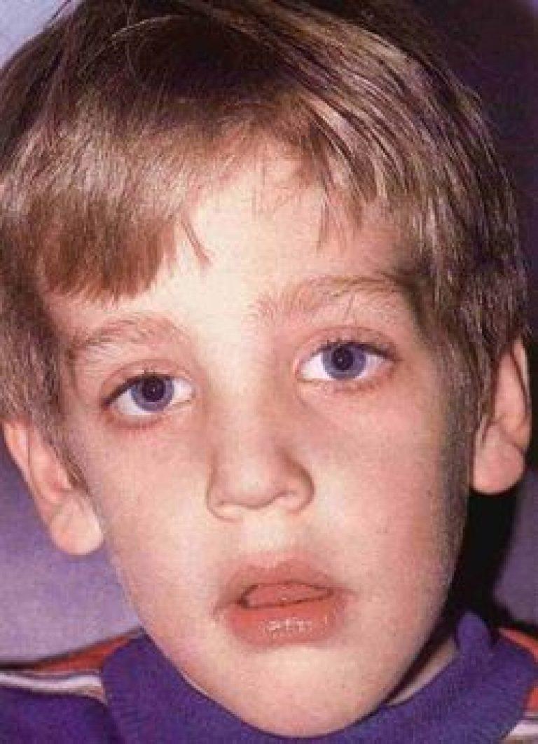 увеличенный лимфоузел на шее у ребенка с одной стороны причины фото