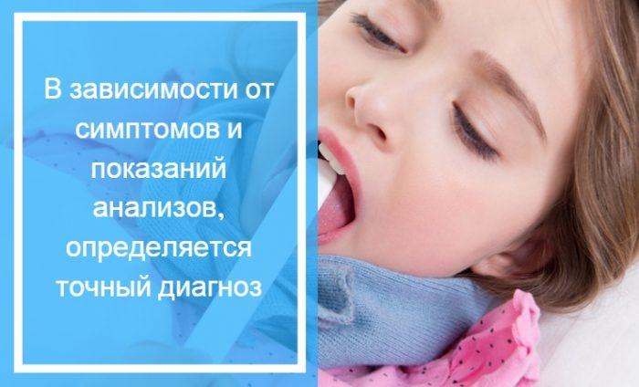 Больное горло и насморк свидетельствует о вирусе