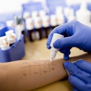 Кожная проба на аллерген