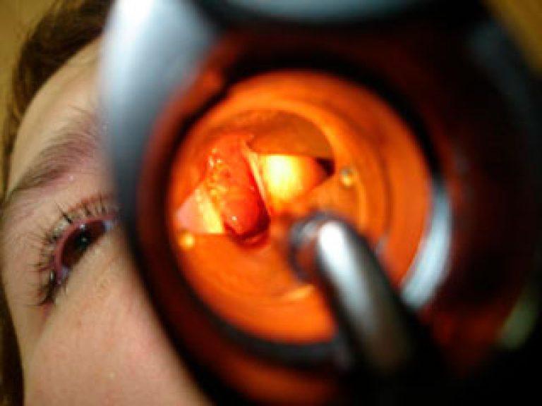 Как снять отек носа у беременных 2