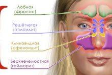 Схема придаточных пазух носа