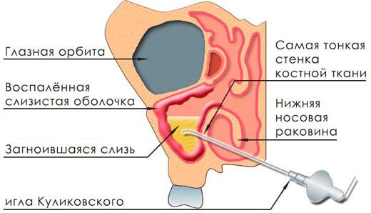 схема прокола пазух носа
