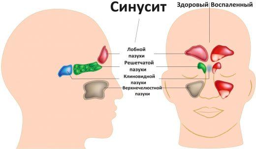 локализация синусита