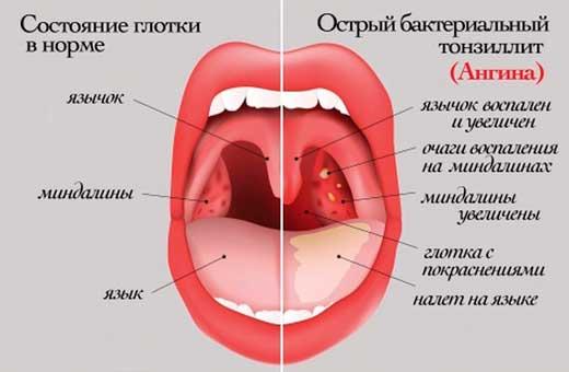 схема локализации ангины
