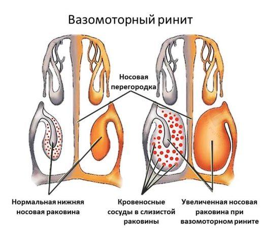 локализация вазомоторного ринита
